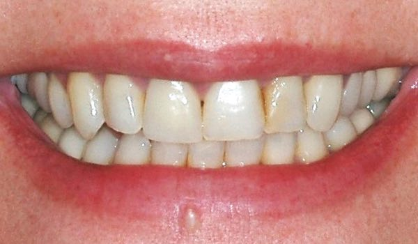 tulsa dentist dr randy mccormick